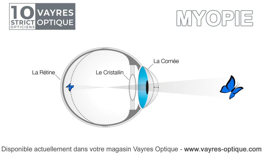 Information sur la Myopie